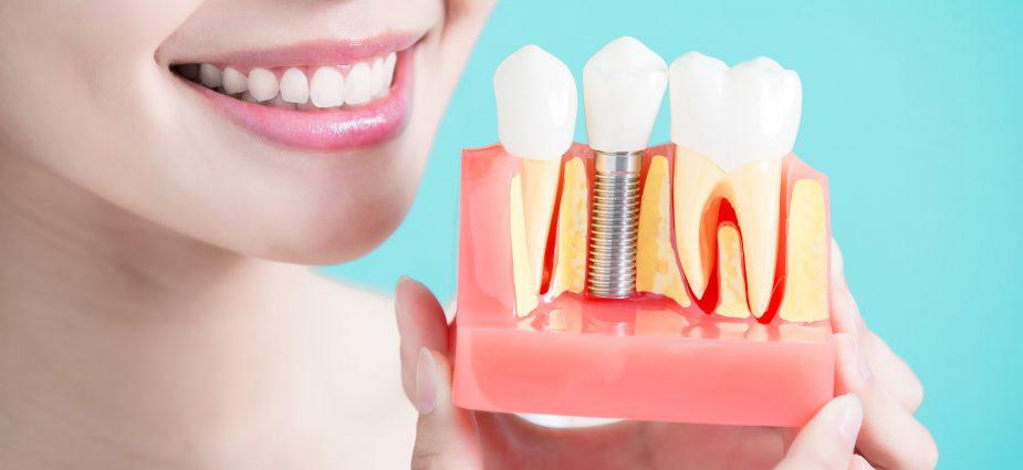 Az implantátum úgy illeszkedik, mint az eredeti fog