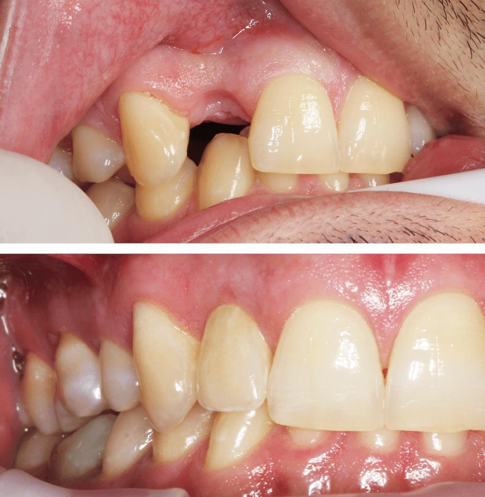 Fogpotlás előtt és után - a fogsor ismét tökéletes.