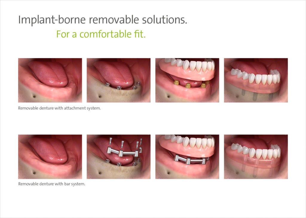 Kivehető fogpótlás, műfogsor rögzítésére ideális és hatékony megoldás az implantáció.