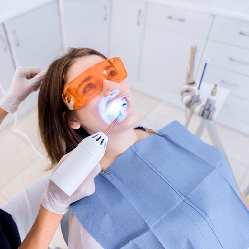 A rendelői fogfehérítés a fog fehérítés egyik bevett módszere