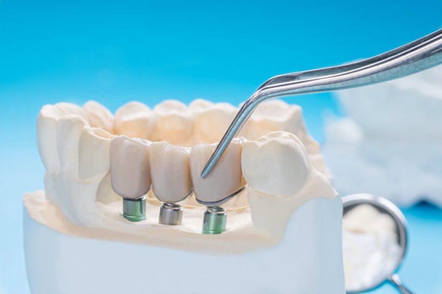 implantátumra kerülő fogmű