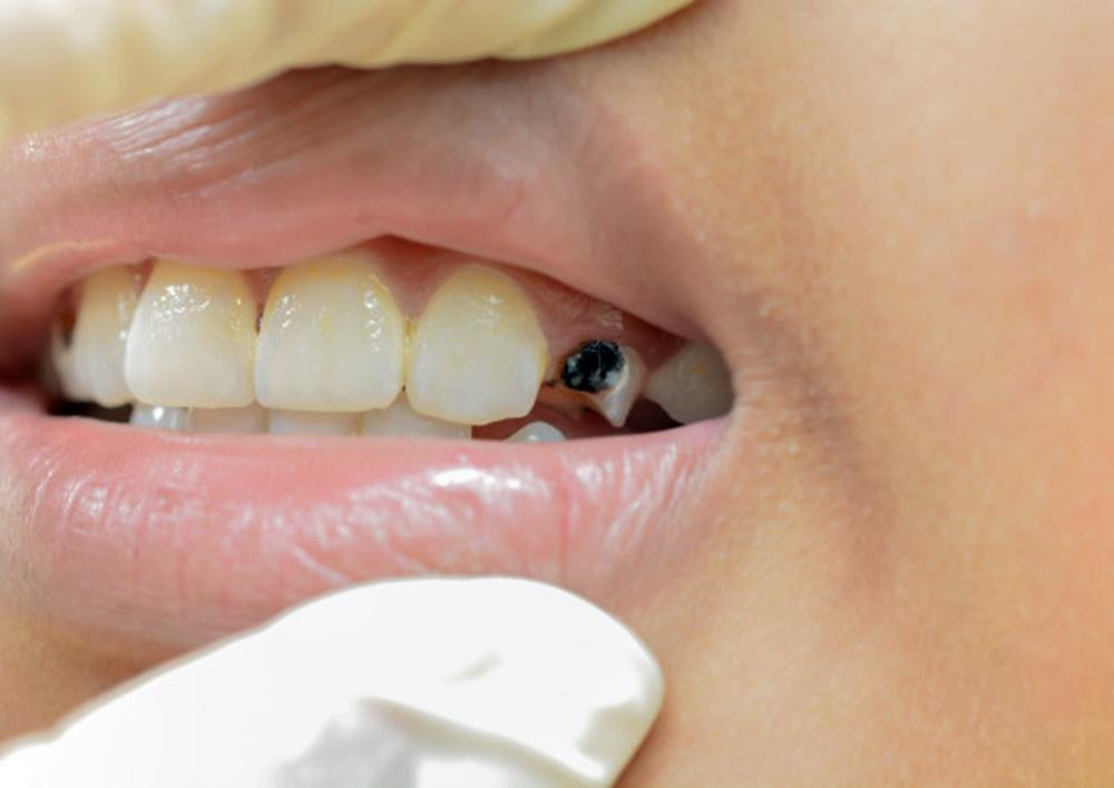 A fogszuvasodás megelőzése jobb megoldás, mint a fogszuvasodás kezelése.