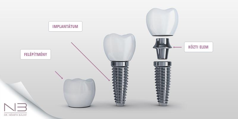 A fog implantátum fajták között van egy- és kétfázisú fog implantátum.