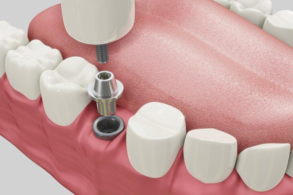 Melyik a legjobb fog implantátum? A mai modern fogászati implantátumok közül sokan a Straumann implantátumot ajánlják.