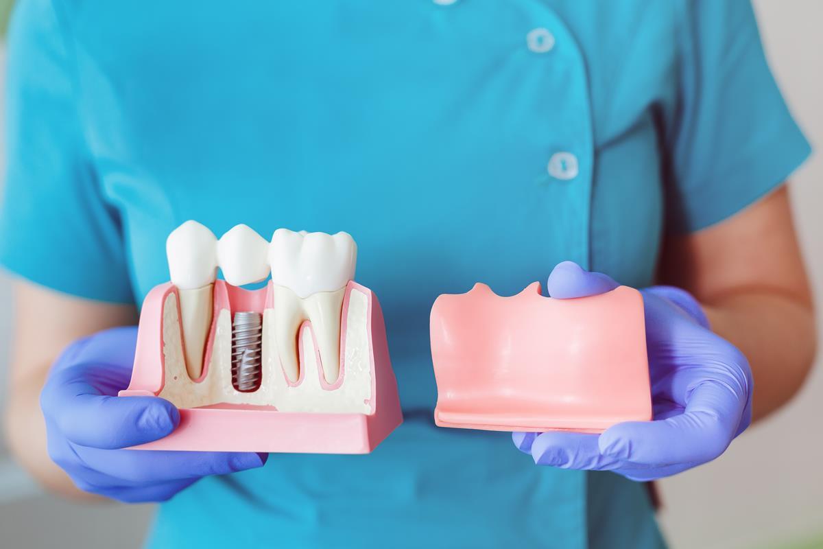 Melyik a legjobb fog implantátum? Személytől és esettől függ, de a fogorvos tudja a választ.